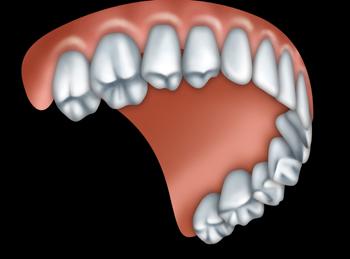 A full upper denture