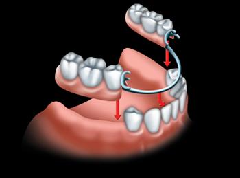 A partial denture