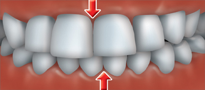 A crossbite occurs when one or more of your upper teeth don't  line up with the appropriate lower tooth or teeth .