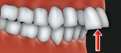 An overjet occurs when the upper front teeth protrude.
